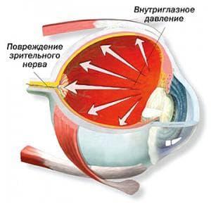 внутриглазное давление и повреждение зрительного нерва