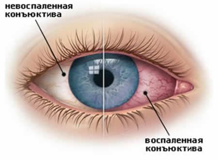 воспаление конъюнктивы - главный признак конъюнктивита