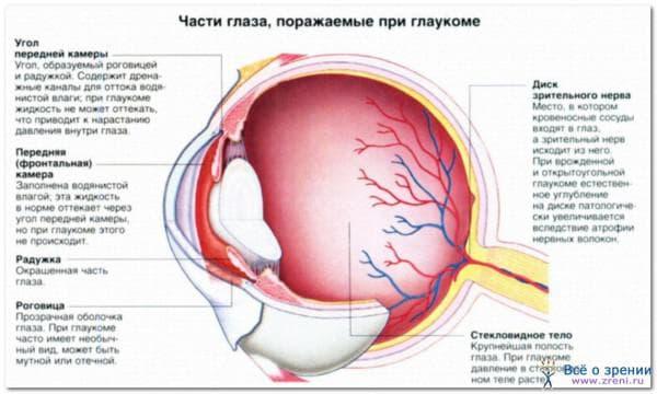 глаукома как следствие увеита