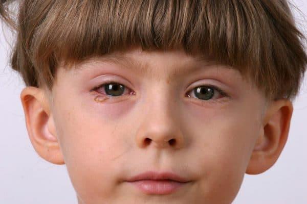 детский аллергический конъюнктивит