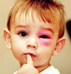 детский конъюнктивит