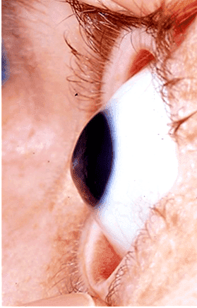 жесткие контактные линзы являются единственным способом скорректировать зрение