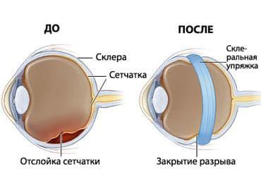 лечение отслоения сетчатки