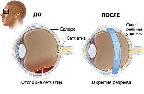 Лечение отслойки сетчатки глаза методом пломбирования