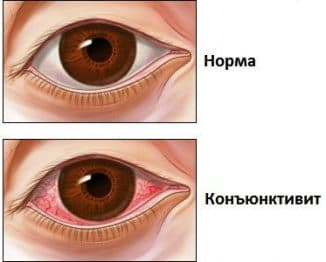 признаки инфекционного конъюнктивита