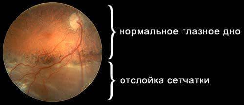 нормальное глазное дно и поврежденное