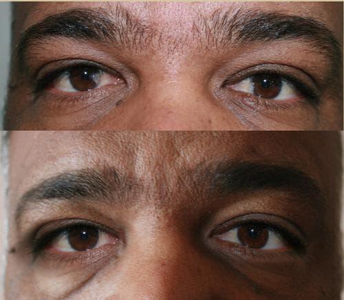 опасность от птеригиума глаза