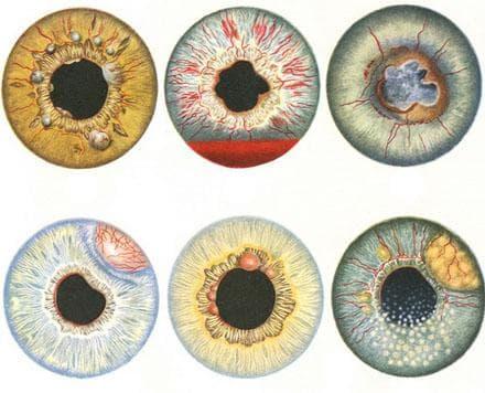 осложнения при глаукоме повреждение радужки глаза