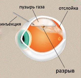 Причины отслоение сетчатки глаза