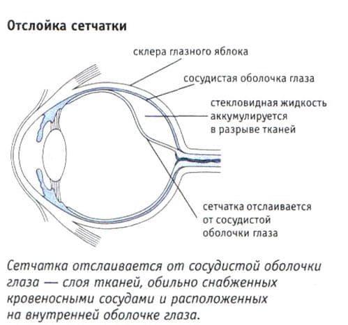 Причины отслоения сетчатки глаза
