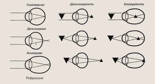 Проверка рефракции зрения
