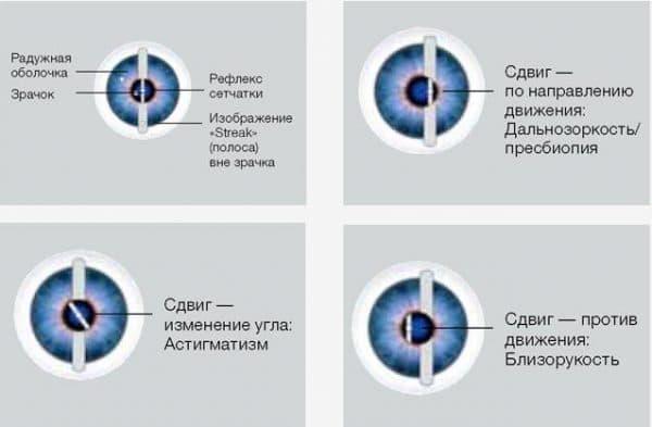 процесс измерения при ретиноскопии