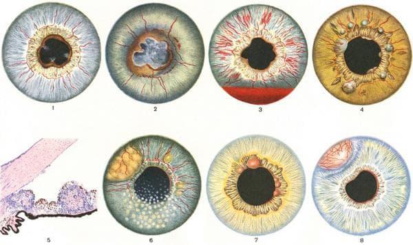 разрушение радужки глаза