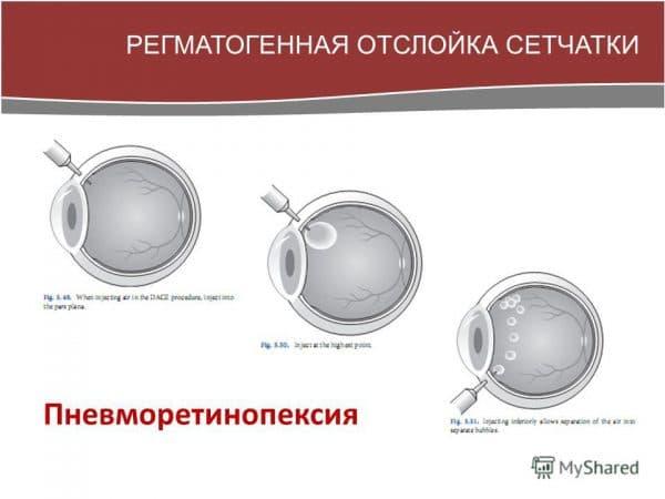 регматогенная отслойка сетчатки