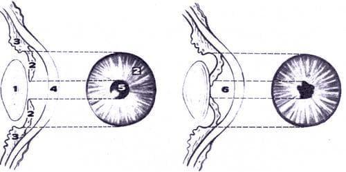 На этом рисунке схематически изображен нормальный глаз: хрусталик (1), радужная оболочка (2), цилиарное тело (3), роговица (4). Зрачок (5) имеет правильную круглую форму. При тяжелом запущенном иридоциклите зрачковый край радужной оболочки сросся с хрусталиком, а сама она выпячена в переднюю камеру глаза (6). Зрачок неправильной формы