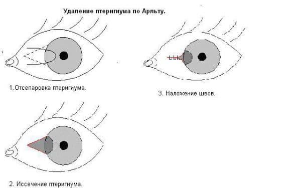 удаление птеригиума глаза