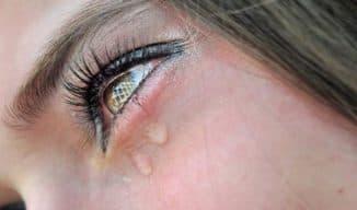 причины и лечение слезотечения