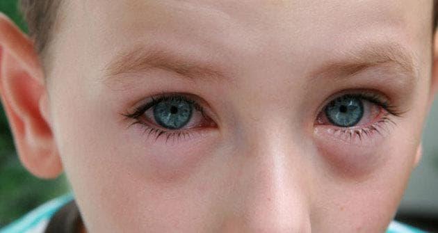 Гнойный конъюнктивит у новорожденного — Все о проблемах с глазами