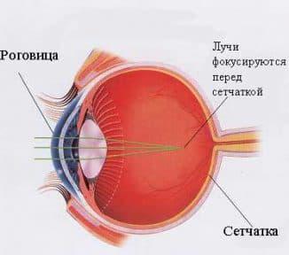 как восстановить зрение при миопии близорукости