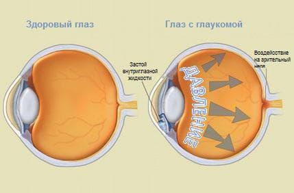 Как видит глаз с глаукомой на разных стадиях: лечение