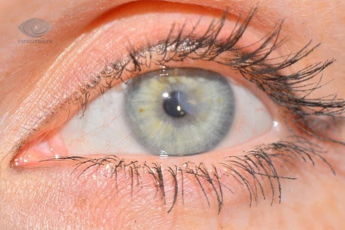 Эрозия роговицы глаза: травматическая и рецидивирующая. 6 причин возникновения эрозии роговицы глаза