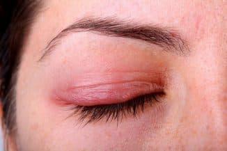 веки глаз воспаление