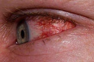 Покраснение глаз в следствии заболевания
