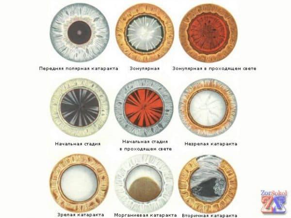 виды катаракт