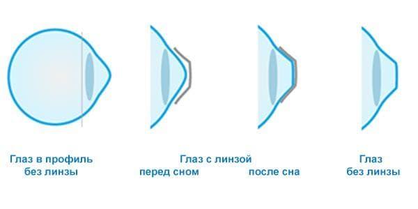 ортокератологические контактные линзы