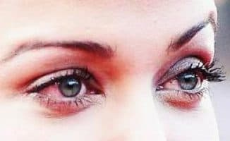 основные причины покраснения глаз