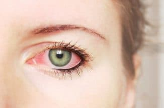 покраснения глаз причины