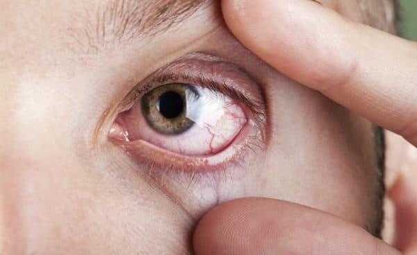 симптомы сухого глаза