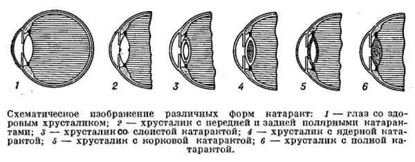 схематическое изображение разных видов катаракт