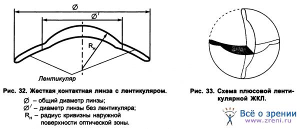 цилиндрические контактные линзы