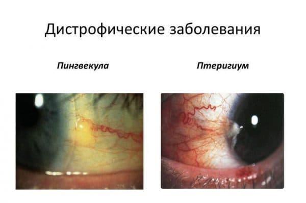 дистрофические заболевания