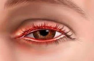 симптомы и лечение блефарита