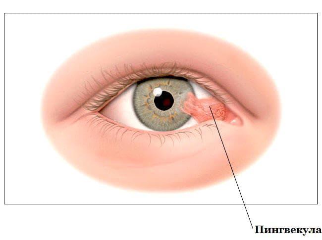 На белке глаза пузырек - что это и как лечить возникший симптом