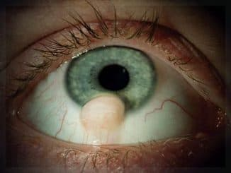 лечение пингвекулы глаза