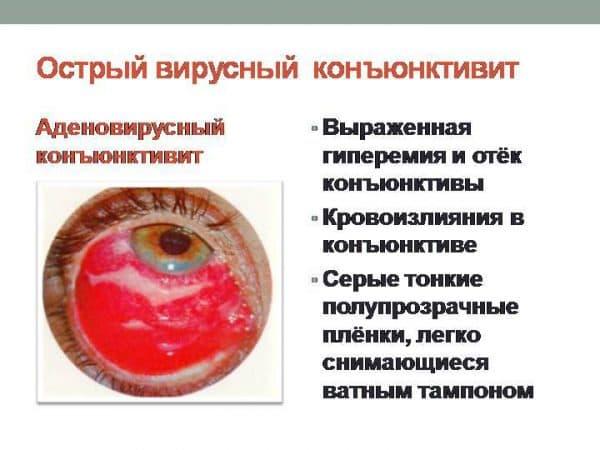 острый вирусный конъюнктивит