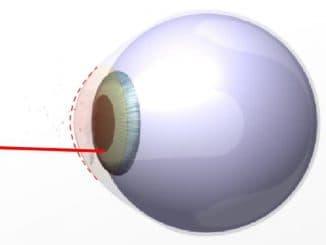 Характеристика линз ночной коррекции зрения. Особенности ношения, подбора ночных линз. Ведущие производители. Уход за линзами ночной коррекции зрения