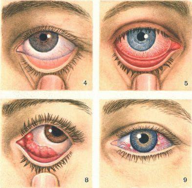 проявление вирусного конъюнктивита