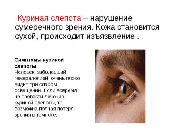 simptomy-kurinoj-slepoty