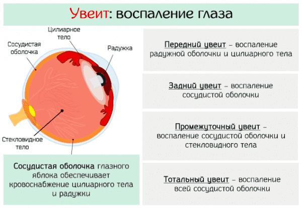 vospalenie-sosudistoj-obolochki-glaza