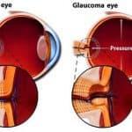 какое нормальное глазное давление при глаукоме