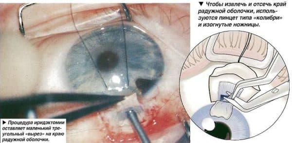 kak-provoditsya-operaciya