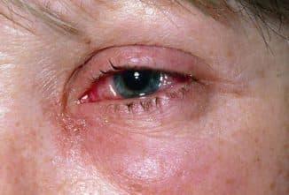 proyavlenie-allergii-na-glaza