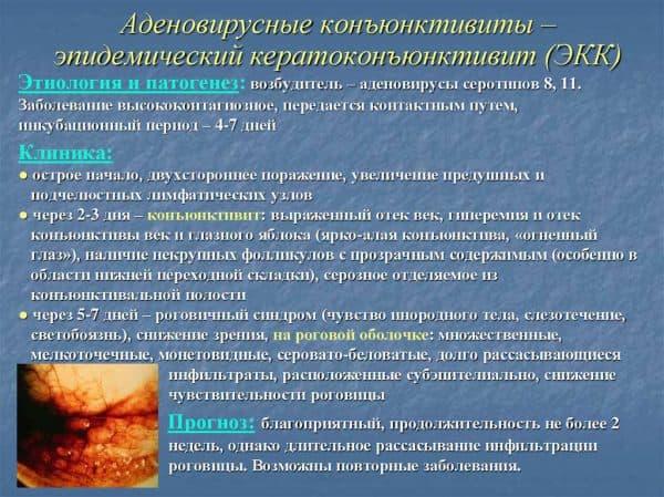 adenovirusnyj-keratokonyunktivit