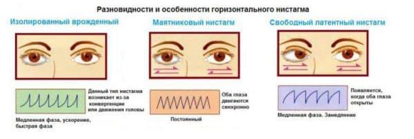 vidy-nistagma
