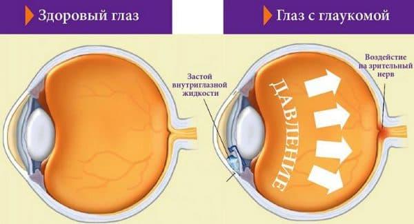 Гипертензия внутриглазная