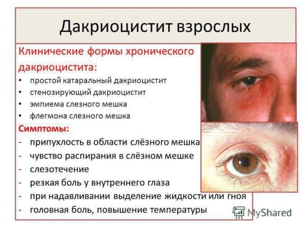 dakriocistit-u-vzroslyx
